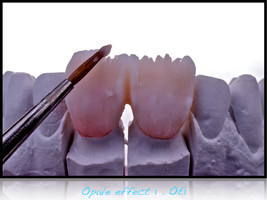 Layering of 2 anterior teeth, 11 and 21.