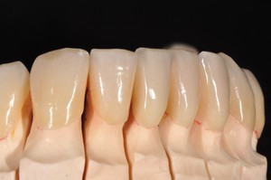 Case1: Clinical case with Dr Koubi S. / Veneers