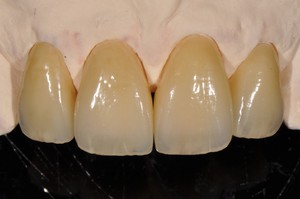 Case2: Clinical case with Dr Jeannin T. / Veneers