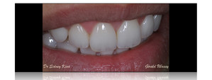 Clinical case, Dr Sidney Kina / 12 anterior veneers
