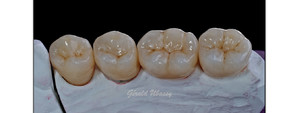 Case 2: Dr Lara Stangacilovic/posterior teeth on customized abutment