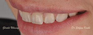 Veneers and crowns/ Dr Stéfan Koubi