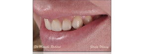 Clinical case with the  Dr Massihi Richard / 6 anterior veneers