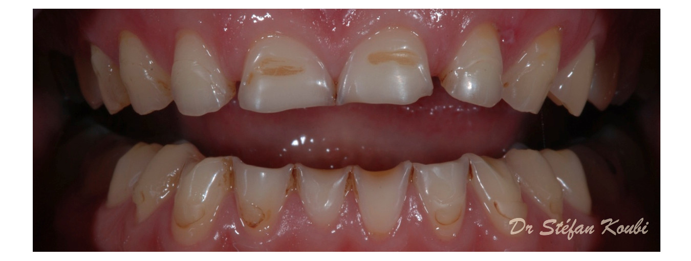 veneers and crowns / Dr Stéfan Koubi