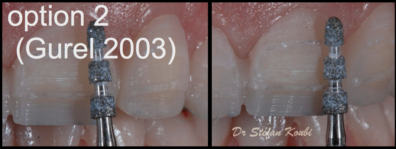 veneers and crowns /Dr Stefan Koubi