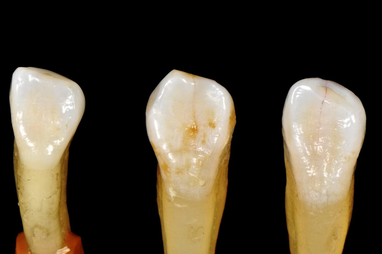 Frenos en mis dientes inferiores